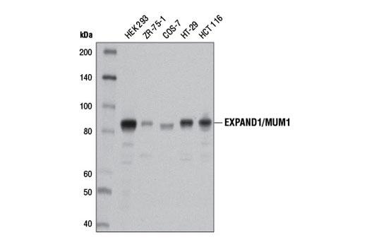 Monoclonal Antibody - EXPAND1/MUM1 (D1Z6Y) Rabbit mAb - Western Blotting, UniProt ID Q2TAK8, Entrez ID 84939 #13437 - #13437
