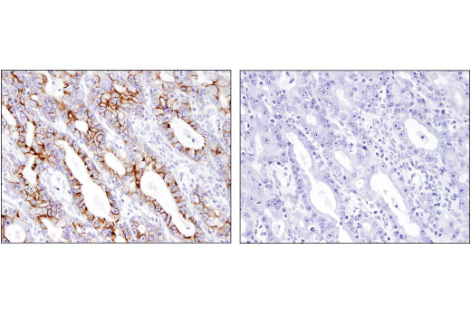 Immunohistochemical analysis of paraffin-embedded human ovarian carcinoma using EphB2 (D2X2I) Rabbit mAb in the presence of control peptide (left) or antigen-specific peptide (right).