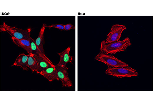 Confocal immunofluorescent analysis of LNCaP (left; positive) and HeLa (right; negative) cells using NKX3.1 (D2Y1A) XP<sup>®</sup> Rabbit mAb (green). Actin filaments were labeled with DyLight™ 554 Phalloidin #13054 (red). Blue pseudocolor = DRAQ5<sup>®</sup> #4084 (fluorescent DNA dye).