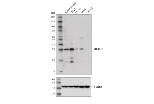 Western blot analysis of extracts from human prostate tissue and various cell lines using NKX3.1 (D6D2Z) XP<sup>®</sup> Rabbit mAb (upper) and β-Actin (D6A8) Rabbit mAb #8457 (lower). DND-41 is negative for NKX3.1 expression, confirming specificity of the antibody.