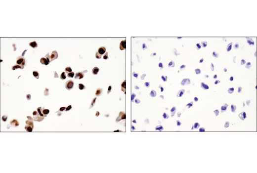 Immunohistochemical analysis of paraffin-embedded LNCaP (left) and PC-3 (right) cell pellets using NKX3.1 (D6D2Z) XP<sup>®</sup> Rabbit mAb.