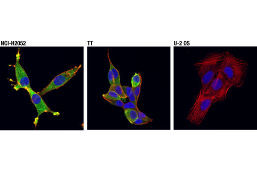 Immunofluorescence Image 1: MTSS1 (D2H4L) XP® Rabbit mAb