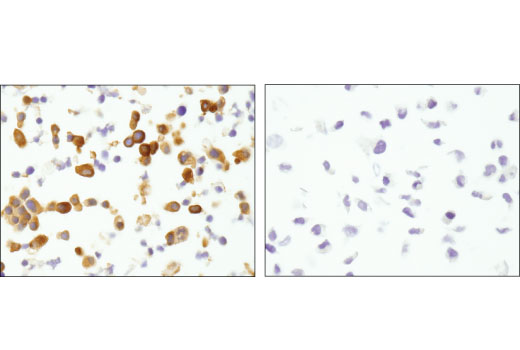 Immunohistochemical analysis of paraffin-embedded TT (left) and U-2 OS (right) cell pellets using MTSS1 (D2H4L) XP<sup>®</sup> Rabbit mAb.