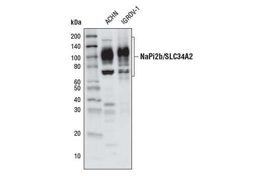Monoclonal Antibody - NaPi2b/SLC34A2 (D3V3I) Rabbit mAb, UniProt ID O95436, Entrez ID 10568 #66445, Slc34a2