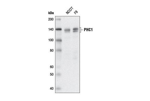 Polyclonal Antibody - PHC1 Antibody - Immunoprecipitation, Western Blotting, UniProt ID P78364, Entrez ID 1911 #13505 - Primary Antibody Conjugates