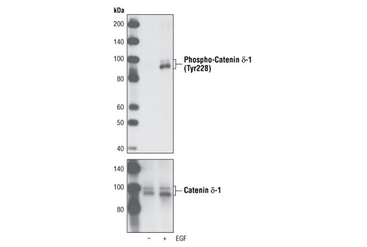 Western blot analysis of extracts from A431 cells, serum-starved overnight and then either left untreated or treated with EGF for 15 minutes, using Phospho-Catenin δ-1 (Tyr228) Antibody (upper) and Catenin δ-1 Antibody #4989 as a loading control (lower).
