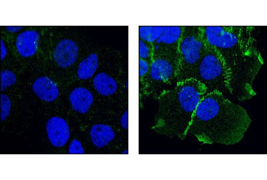 Confocal immunofluorescent analysis of A431 cells, serum-starved (left) or EGF-treated (right), using Phospho-Catenin δ-1 (Tyr228) Antibody (green). Blue pseudocolor = DRAQ5™ (fluorescent DNA dye).