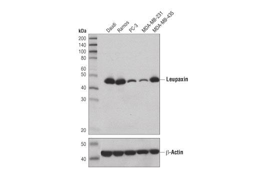Monoclonal Antibody - Leupaxin (D4I3B) Rabbit mAb - Immunoprecipitation, Western Blotting, UniProt ID O60711, Entrez ID 9404 #59309 - #59309