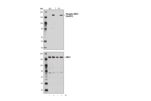 Western blot analysis of extracts from 293 and 3T3 cells, untreated (-) or UV-treated (+), using Phospho-SMC1 (Ser957) (D7S8Y) Rabbit mAb (upper) or SMC1 (8E6) Mouse mAb #6892 (lower).