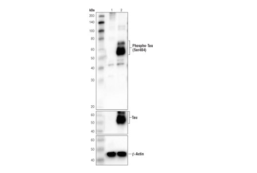 Western blot analysis of extracts from MEF cells (lane 1) and mouse brain (lane 2) using Phospho-Tau (Ser404) (D2Z4G) Rabbit mAb (IF preferred) (upper), Tau (Tau46) Mouse mAb #4019 (middle) and β-Actin (D6A8) Rabbit mAb #8457 (lower).