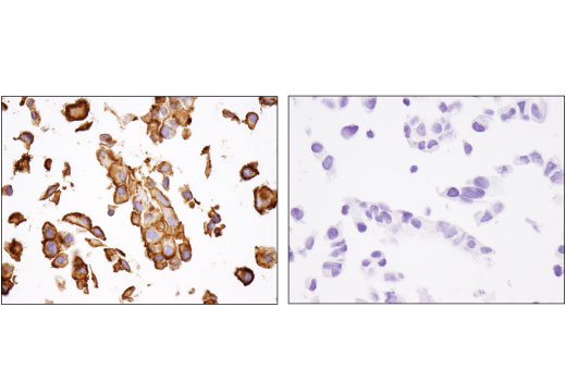 Image 30: Coronavirus Host Cell Attachment and Entry Antibody Sampler Kit