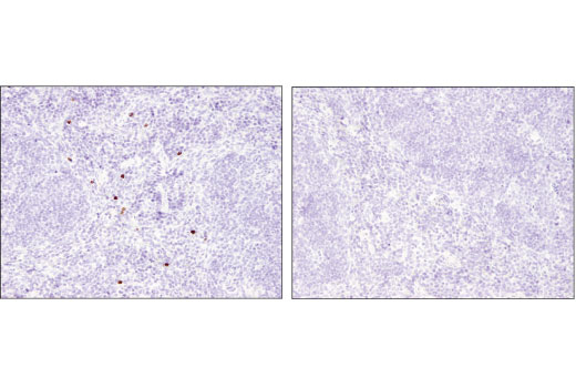Immunohistochemical analysis of paraffin-embedded wild-type (left) and Olfm4 knockout (right) mouse spleen using Olfm4 (D6Y5A) XP<sup>®</sup> Rabbit mAb (Mouse Specific). (Tissue courtesy of Dr. Wenli Lui and Dr. Griffin P. Rodgers, National Institute of Diabetes and Digestive and Kidney Diseases, Bethesda, MD).