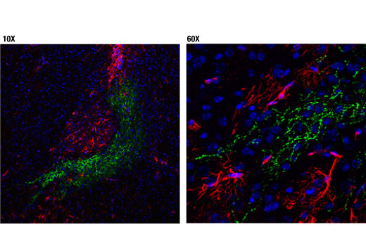 Monoclonal Antibody - VIP (D8J1V) Rabbit mAb (IF Formulated), UniProt ID P01282, Entrez ID 7432 #63269, Immunofluorescence