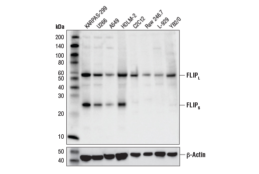 Western blot analysis of extracts from various cell lines using FLIP (D5J1E) Rabbit mAb (upper) or β-Actin (D6A8) Rabbit mAb #8457 (lower). KARPAS cell line source: Dr. Abraham Karpas at the University of Cambridge.