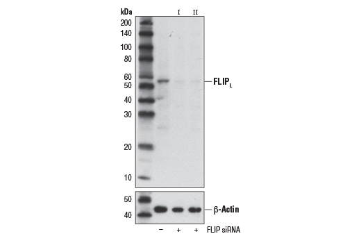 Western blot analysis of extracts from A549 cells, transfected with 100 nM SignalSilence<sup>®</sup> Control siRNA (Unconjugated) #6568 (-), SignalSilence<sup>®</sup> FLIP siRNA I #12372 (+), or SignalSilence<sup>®</sup> FLIP siRNA II #12407 (+), using FLIP (D5J1E) Rabbit mAb (upper) or β-Actin (D6A8) #8457 (lower). The FLIP (D5J1E) Rabbit mAb confirms silencing of FLIP expression, while the β-Actin (D6A8) Rabbit mAb is used as a loading control.