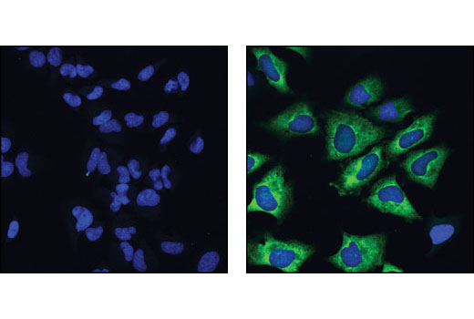 Confocal immunofluorescent analysis of HeLa cells, treated with wortmannin and U0126 (left) or PMA (right), using Phospho-S6 Ribosomal Protein (Ser235/236) (D57.2.2E) XP<sup>®</sup> Rabbit mAb (Alexa Fluor<sup>®</sup> 488 Conjugate). Blue pseudocolor = DRAQ5™ (fluorescent DNA dye).