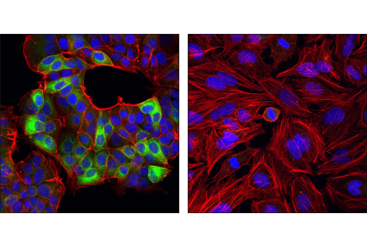 Confocal immunofluorescent analysis of MCF7 (left) and HeLa cells (right) using Ret (C31B4) Rabbit mAb (green). Actin filaments were labeled with DY-554 phalloidin (red). Blue pseudocolor = DRAQ5® #4084 (fluorescent DNA dye).
