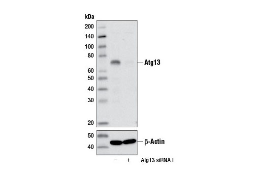 Western blot analysis of extracts from HeLa cells, transfected with 100 nM SignalSilence<sup>®</sup> Control siRNA (Unconjugated) #6568 (-) or SignalSilence<sup>®</sup> Atg13 siRNA I #12043 (+), using Atg13 (E1Y9V) Rabbit mAb (upper) or β-Actin (D6A8) Rabbit mAb #8457 (lower). The Atg13 (E1Y9V) Rabbit mAb confirms silencing of Atg13 expression, while the β-Actin (D6A8) Rabbit mAb is used as a loading control.