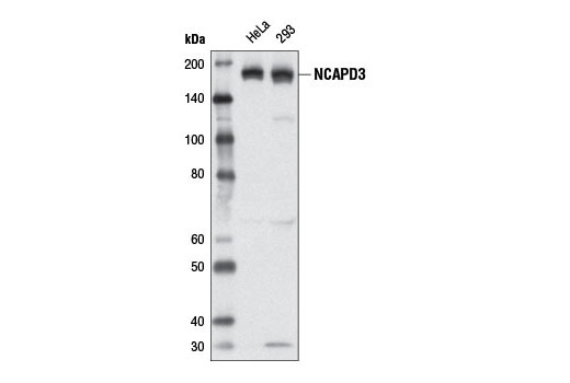 Western blot analysis of extracts from HeLa and 293 cell lines using NCAPD3 (D3H6L) Rabbit mAb.