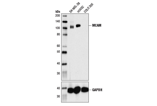 Western blot analysis of extracts from SK-MEL-28, HUVEC, and COLO 205 cells using MCAM (P1H12) Mouse mAb (upper) and GAPDH (D16H11) XP<sup>®</sup> Rabbit mAb #5174 (lower). As expected, COLO 205 cells are negative for MCAM protein.