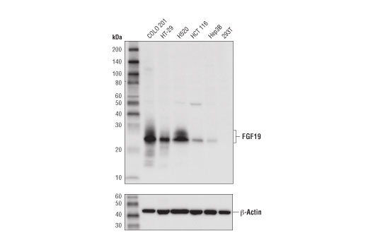 Western blot analysis of extracts from various cell lines using FGF19 (D1N3R) Rabbit mAb (upper) and β-Actin (D6A8) Rabbit mAb (lower).