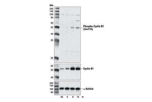 Polyclonal Antibody - Phospho-Cyclin B1 (Ser116) Antibody - Western Blotting, UniProt ID P14635, Entrez ID 891 #13495
