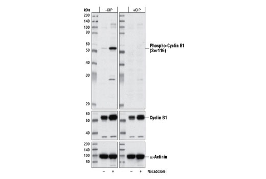 Western blot anaylsis of HeLa cell extracts, untreated (-) or treated with Nocodazole #2190 (10 nM, 24 hr; +) using Phospho-Cyclin B1 (Ser116) Antibody (upper), Cyclin B1 (D5C10) XP® Rabbit mAb #12231 (middle), or α-Actinin (D6F6) XP® rabbit mAb #6487 (lower). Membranes were mock treated (- CIP) or Calf Intestinal Alkaline Phosphatase treated (+ CIP) after transfer.