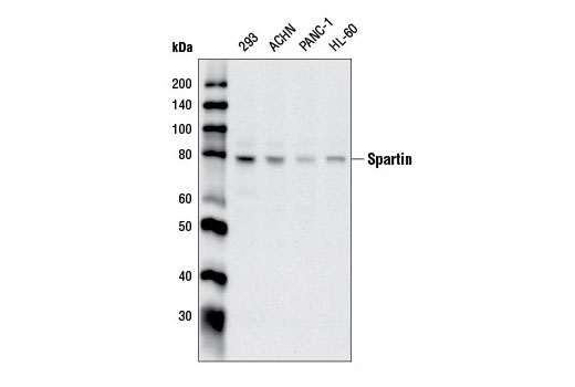 Polyclonal Antibody - Spartin Antibody - Western Blotting, UniProt ID Q8N0X7, Entrez ID 23111 #13520, Cell Cycle / Checkpoint Control