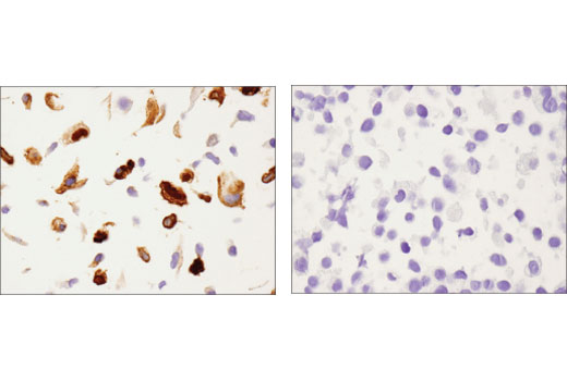 Immunohistochemical analysis of paraffin-embedded A549 (left) and LNCaP (right) cell pellets using Annexin A1 (D5V2T) XP<sup>®</sup> Rabbit mAb.