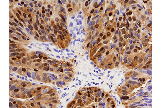 Immunohistochemical analysis of paraffin-embedded human endometrioid adenocarcinoma of the ovary using Annexin A1 (D5V2T) XP<sup>®</sup> Rabbit mAb.