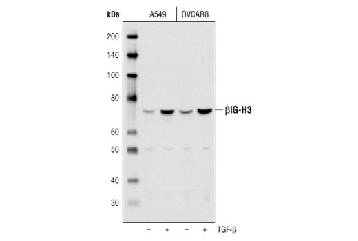Polyclonal Antibody Immunoprecipitation Extracellular Matrix Binding