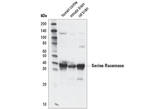 Western blot analysis of extracts from human cortex, mouse brain, and rat brain using Serine Racemase (D5V9Z) Rabbit mAb.