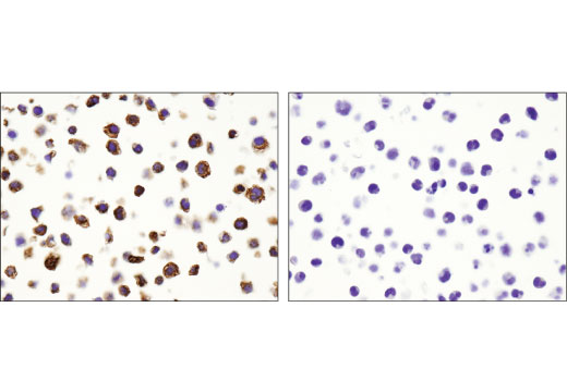 Immunohistochemical analysis of paraffin-embedded THP-1 (left) and Jurkat (right) cell pellets using CD68 (D4B9C) XP<sup>®</sup> Rabbit mAb.