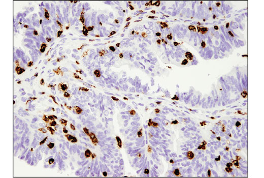 Immunohistochemical analysis of paraffin-embedded human serous papillary carcinoma of the ovary using CD68 (D4B9C) XP<sup>®</sup> Rabbit mAb.