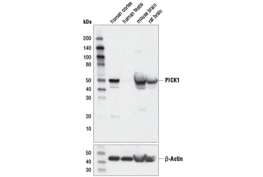 Western blot analysis of extracts from various tissues using PICK1 (D6W7M) Rabbit mAb (upper) and β-Actin (D6A8) Rabbit mAb #8457 (lower).