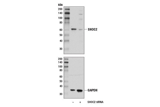 Western blot analysis of extracts from 293T cells, mock transfected (-) or transfected with siRNA targeting human <i>SHOC2</i> (+), using SHOC2 (D7N1A) Rabbit mAb (upper) and GAPDH (D16H11) XP<sup>®</sup> Rabbit mAb #5174 (lower).