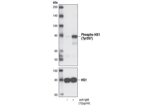 Western blot analysis of total extracts from Ramos cells, serum-starved for 2 hours and treated with anti-IgM antibody for 10 minutes, using Phospho-HS1 (Tyr397) Antibody (upper) or HS1 Antibody (Human Specific) #4503 (lower).