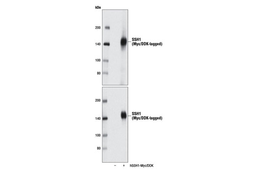 Western blot analysis of extracts from 293T cells, mock transfected (-) or transfected with a construct expressing Myc/DDK-tagged full-length human SSH1 protein (hSSH1-Myc/DDK; +), using SSH1 (E1K3W) Rabbit mAb (upper) or Myc-Tag (71D10) Rabbit mAb #2278 (lower).