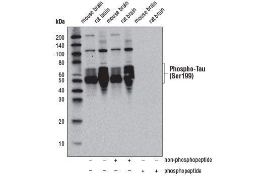 Western blot analysis of extracts from mouse and rat brain using Phospho-Tau (Ser199) Antibody. The phospho-specificity of Phospho-Tau (Ser199) Antibody was verified by peptide blocking using a phosphopeptide or non-phosphopeptide targeting residue Ser199.