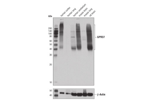 Western blot analysis of extracts from the indicated tissues using GPR37 (D4C8H) Rabbit mAb (upper) and β-Actin (D6A8) Rabbit mAb #8457 (lower).