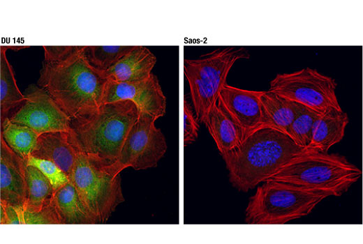Confocal immunofluorescent analysis of DU 145 (positive, left) or Saos-2 (negative, right) cells using NQO1 (D6H3A) Rabbit mAb (green). Actin filaments were labeled with DyLight™ 554 Phalloidin #13054 (red). Blue pseudocolor = DRAQ5<sup>®</sup> #4084 (fluorescent DNA dye).