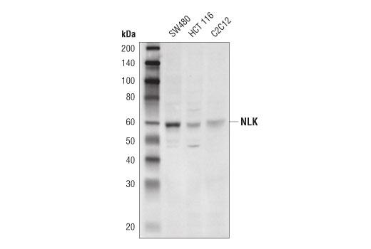Monoclonal Antibody - NLK (D9X3C) Rabbit mAb - Western Blotting, UniProt ID Q9UBE8, Entrez ID 51701 #94350