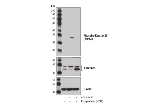 Western blot analysis of extracts from of HT-29 cells, untreated (-), treated with Anisomycin #2222 (25 μg/ml, 30 min; +), or treated with Anisomycin and Calf Intestinal Phosphatase (CIP)/λ phosphatase (+), using Phospho-Keratin 20 (Ser13) (D9M6O) Rabbit mAb (upper), Keratin 20 (D9Z1Z) XP<sup>®</sup> Rabbit mAb #13063 (middle) or β-Actin (D6A8) Rabbit mAb #8547 (lower).