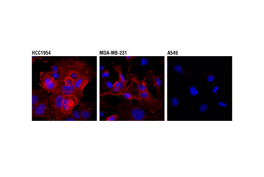Confocal immunofluorescent analysis of HCC1954 (left), MDA-MB-231 (middle) or A549 (right) using PD-L1 (Extracellular Domain Specific) (D8T4X) (Alexa Fluor<sup>®</sup> 555 Conjugate) Rabbit mAb (green). Blue pseudocolor = DRAQ5<sup>®</sup> #4084 (fluorescent DNA dye).