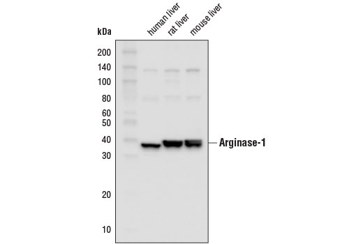 Western blot analysis of extracts from human, rat, and mouse liver using Arginase-1 (D4E3M™) XP® Rabbit mAb (HRP Conjugate).