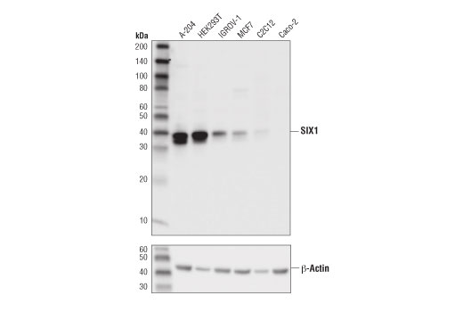 Western blot analysis of extracts from various cell lines using SIX1 (D5S2S) Rabbit mAb (upper) and β-Actin (D6A8) Rabbit mAb #8457 (lower).