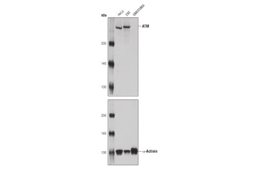 Monoclonal Antibody - ATM (11G12) Mouse mAb - Western Blotting, UniProt ID Q13315, Entrez ID 472 #92356 - Cell Cycle / Checkpoint Control