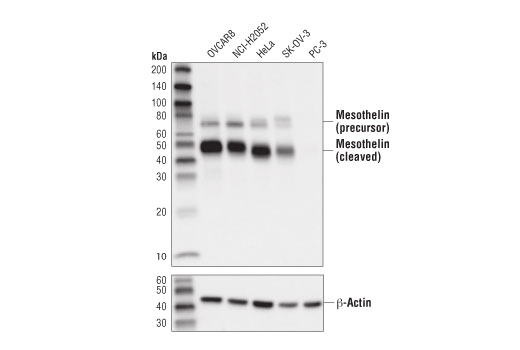 Western blot analysis of extracts from various cell lines using Mesothelin (D9R5G) XP<sup>®</sup> Rabbit mAb (upper) and β-Actin (D6A8) Rabbit mAb #8457 (lower).