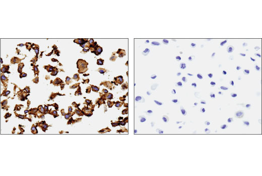Immunohistochemical analysis of paraffin-embedded OVCAR8 (left) and PC3 (right) cell pellets using Mesothelin (D9R5G) XP<sup>®</sup> Rabbit mAb.