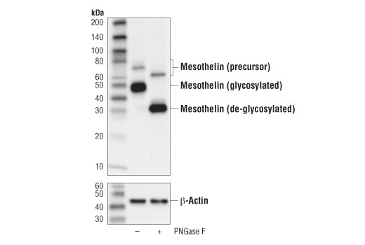 Western blot analysis of extracts from OVCAR8 cells, untreated (-) or PNGase F-treated (+), using Mesothelin (D9R5G) XP<sup>®</sup> Rabbit mAb (upper) and β-Actin (D6A8) Rabbit mAb #8457 (lower).